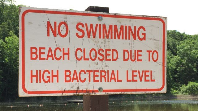 DEEP officials posted signs at Wadsworth Falls State Park on Tuesday. (WFSB)