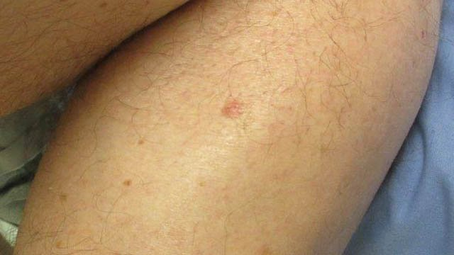 Paul Dykas said skin cancer developed all over his body, including the back of his calf. (Dykas photo)