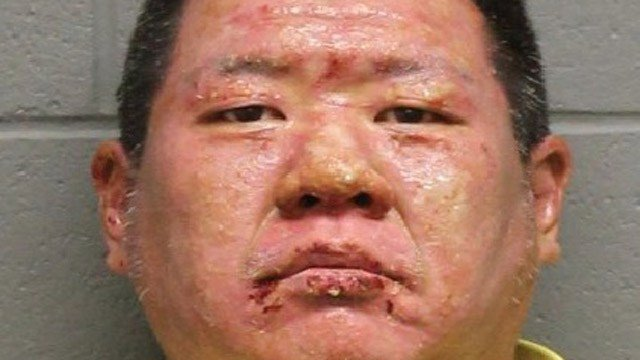Daniel Fung was arrested after a fire revealed his marijuana butter operation, police said. (Watertown police photo)