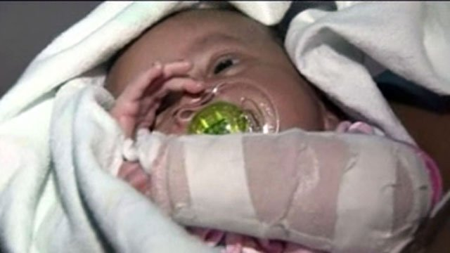 Baby Skyler was shot while still inside her mother's womb.
