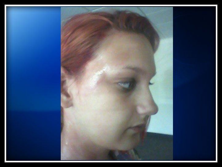 Melissa Welch shows Eyewitness News her second-degree burns.