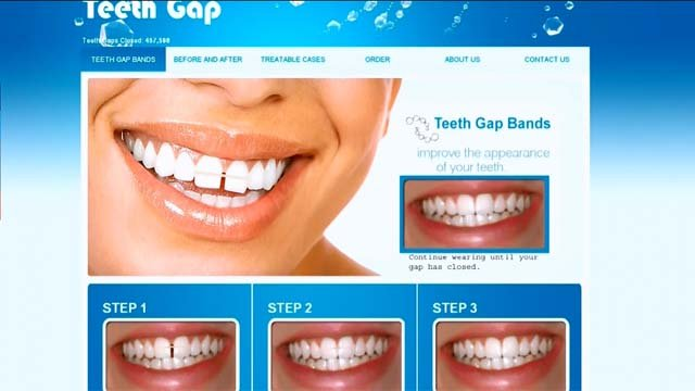 Doctors warn about dangers of DIY dentistry (CBS)