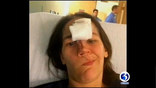 Stephanie Wapenski shows off her injures from a baseball game.