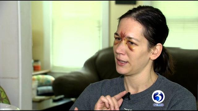 Stephanie Wapenski continues to recover after being hit by a foul ball. (WFSB)