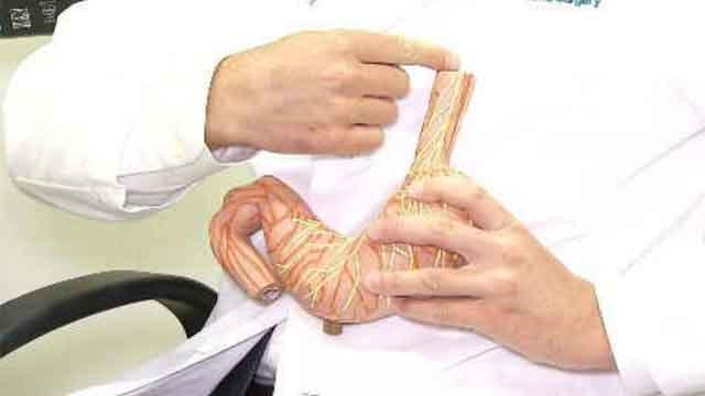 Acid reflux sufferers find relief in procedure (WFSB)