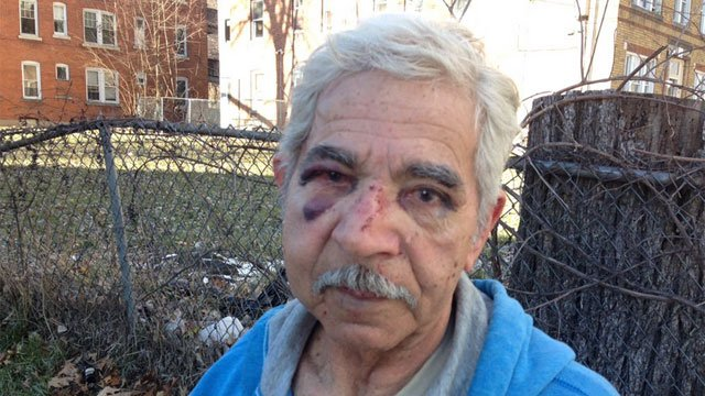 Manuel was attacked by a group of teens for no apparent reason, police said. (WFSB)
