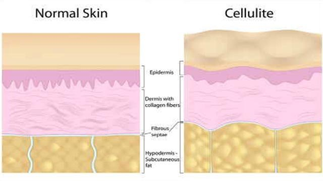 A treatment recently approved by the FDA helps permanently get rid of cellulite (WFSB)